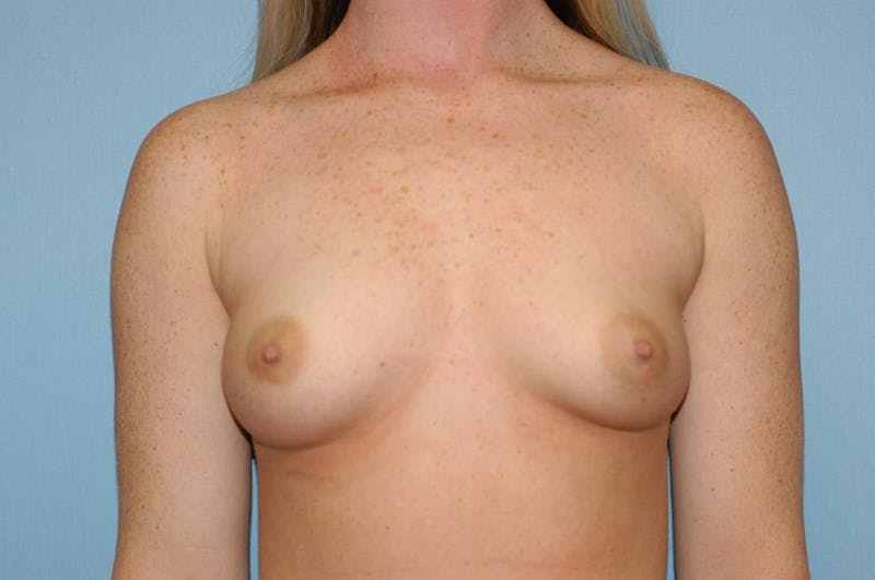 Breast Augmentation  Gallery - Patient 9567933 - Image 1