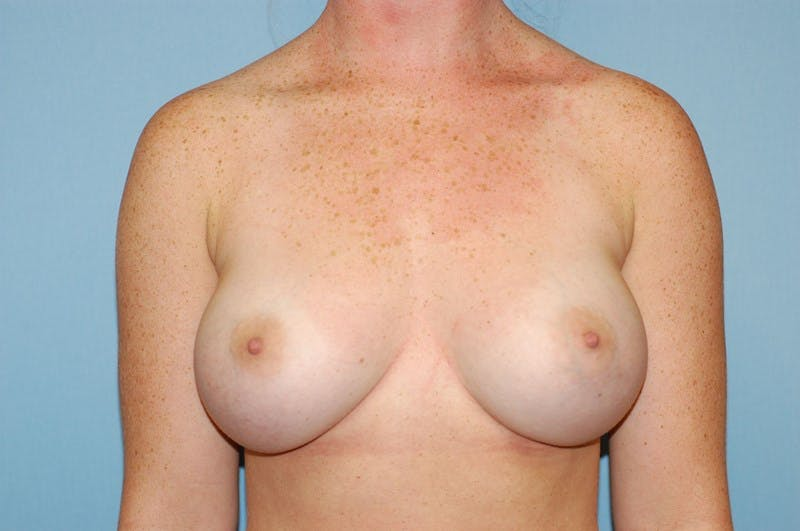 Breast Augmentation  Gallery - Patient 9567933 - Image 2