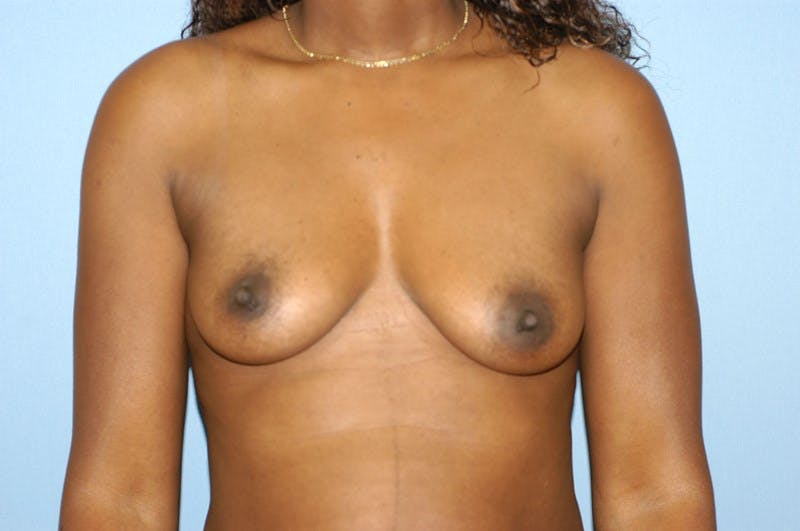 Breast Augmentation  Gallery - Patient 9567943 - Image 1