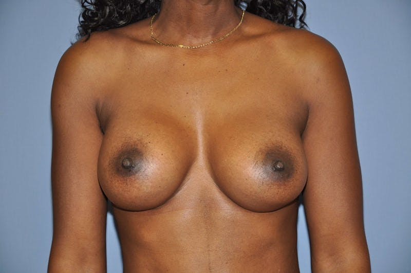 Breast Augmentation  Gallery - Patient 9567943 - Image 2