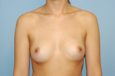 Breast Augmentation  Gallery - Patient 9567945 - Image 1