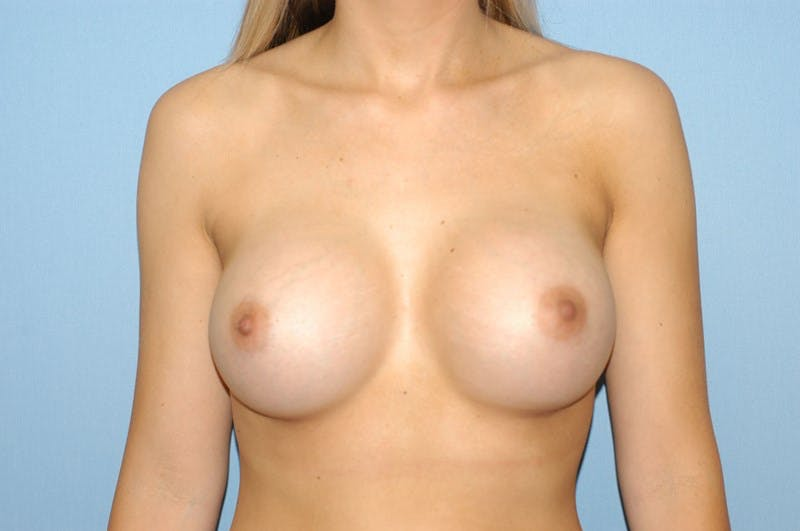 Breast Augmentation  Gallery - Patient 9567945 - Image 2