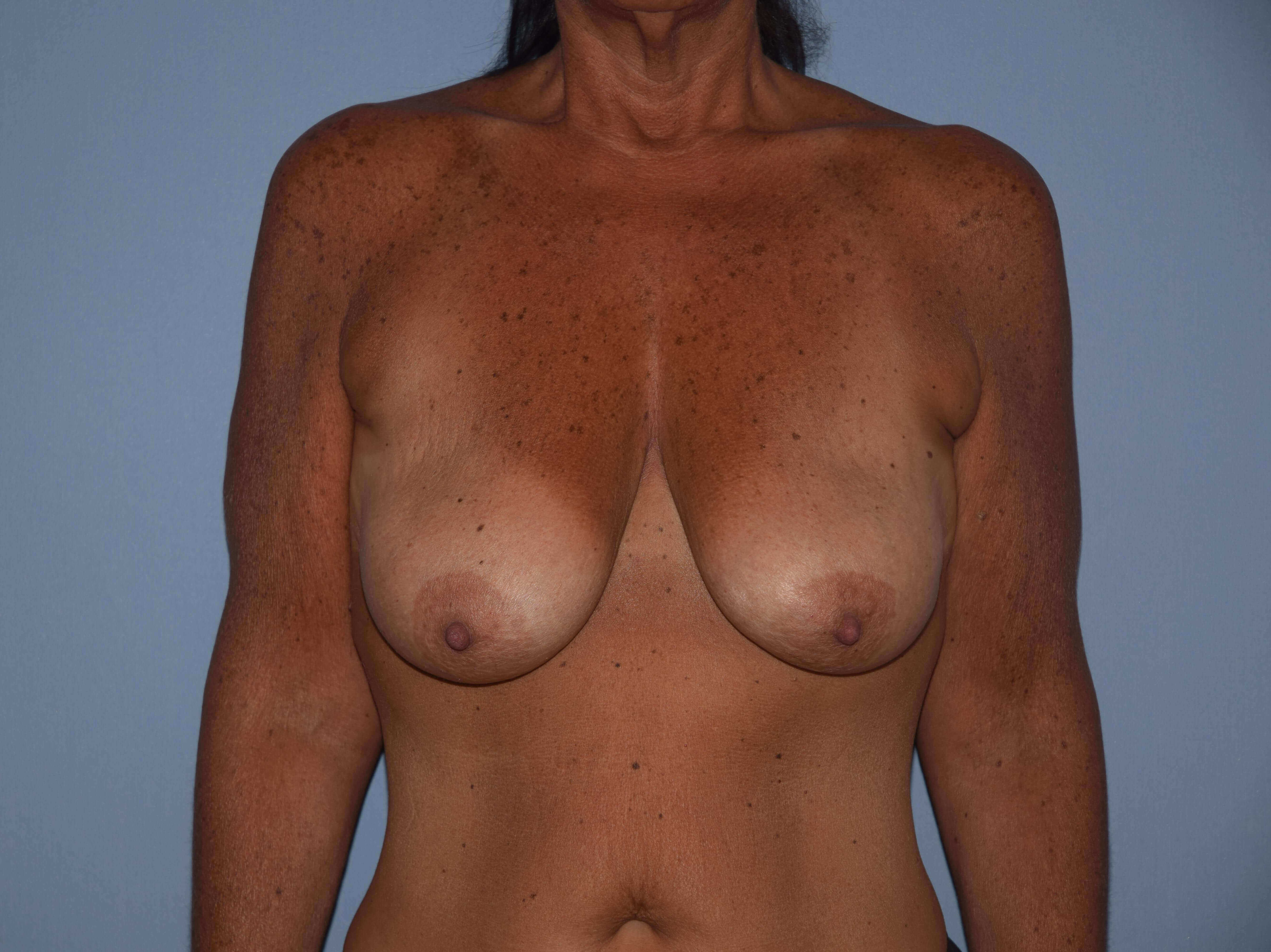 Breast Augmentation Lift Gallery - Patient 14281684 - Image 1