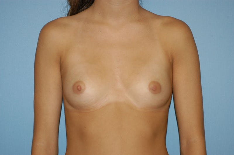 Breast Augmentation  Gallery - Patient 9567955 - Image 1