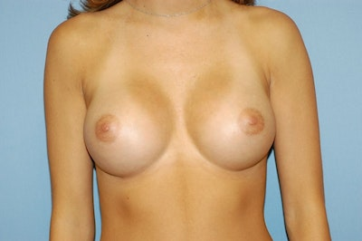 Breast Augmentation  Gallery - Patient 9567955 - Image 2