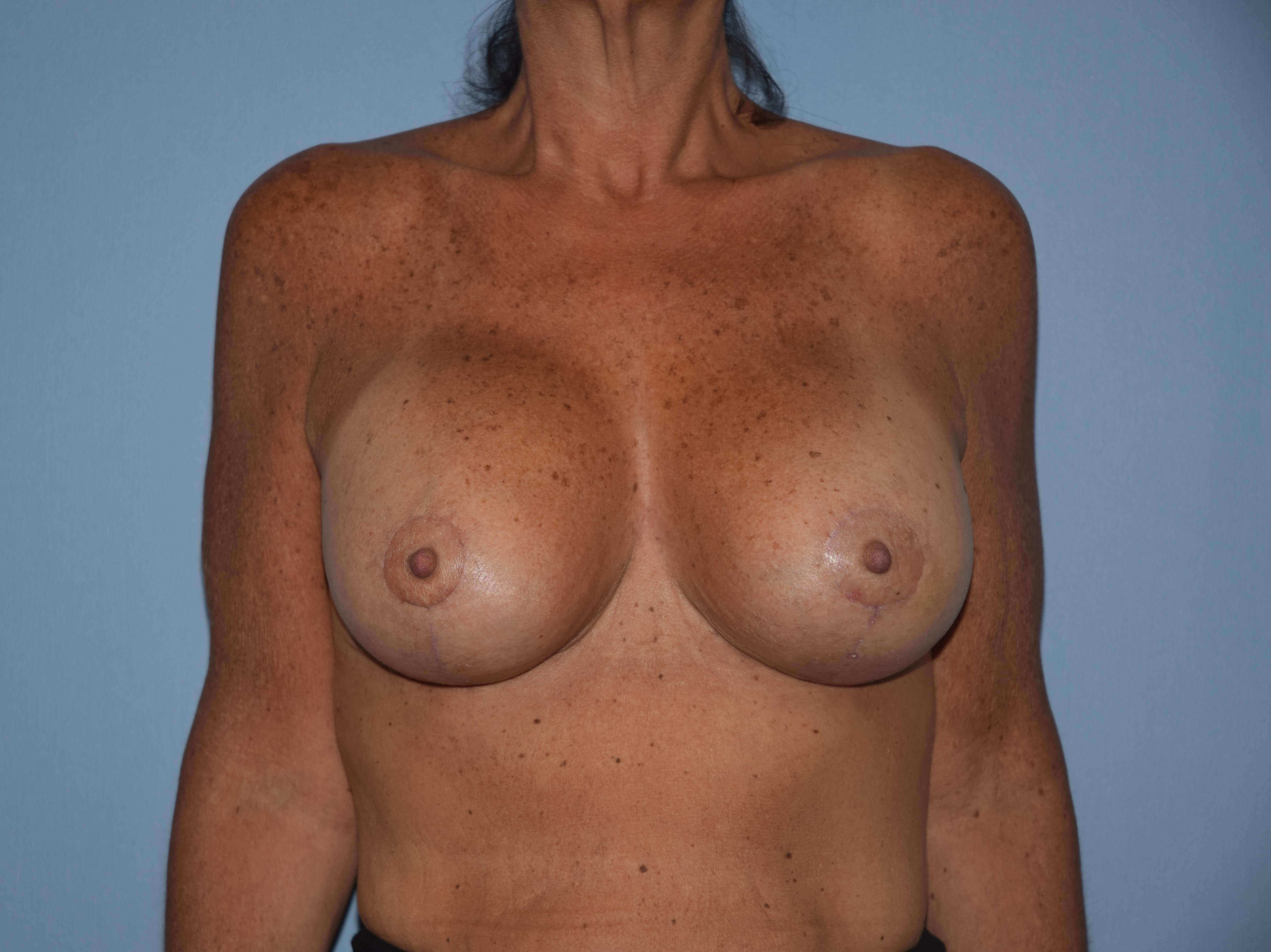 Breast Augmentation Lift Gallery - Patient 14281684 - Image 2