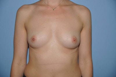 Breast Augmentation  Gallery - Patient 9567957 - Image 1