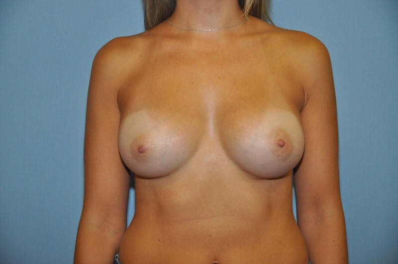 Breast Augmentation  Gallery - Patient 9567957 - Image 2