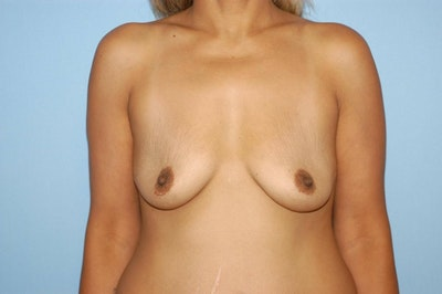 Breast Augmentation  Gallery - Patient 9567968 - Image 1