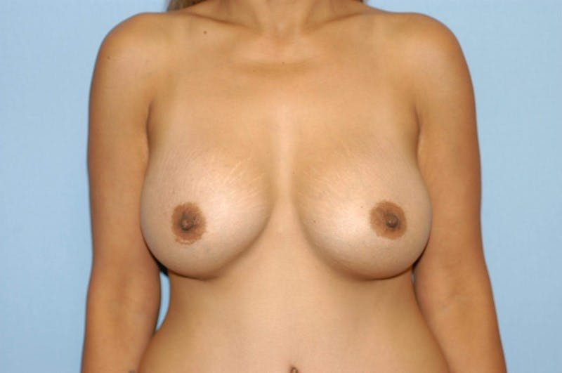 Breast Augmentation  Gallery - Patient 9567968 - Image 2