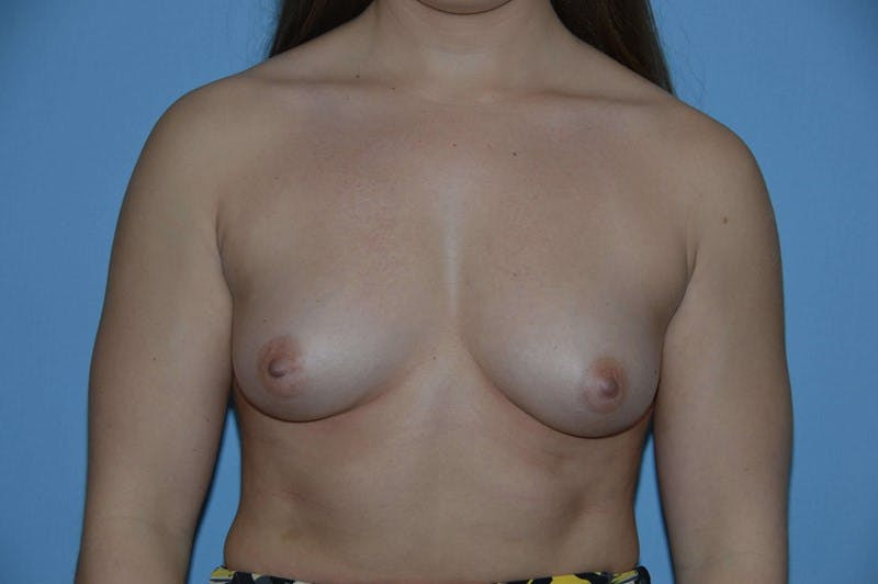 Breast Augmentation  Gallery - Patient 9567972 - Image 1