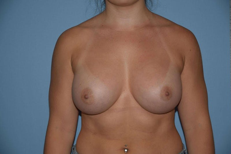 Breast Augmentation  Gallery - Patient 9567972 - Image 2