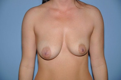 Breast Augmentation  Gallery - Patient 9567980 - Image 1