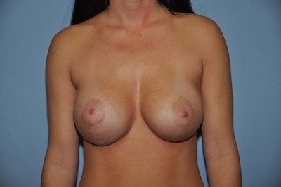 Breast Augmentation  Gallery - Patient 9567980 - Image 2