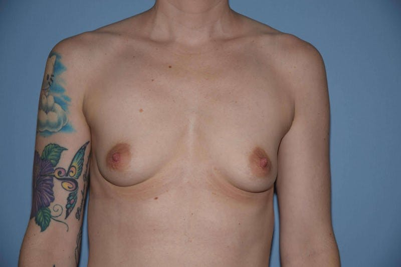 Breast Augmentation  Gallery - Patient 9567990 - Image 1