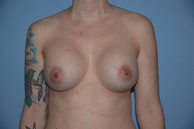 Breast Augmentation  Gallery - Patient 9567990 - Image 2