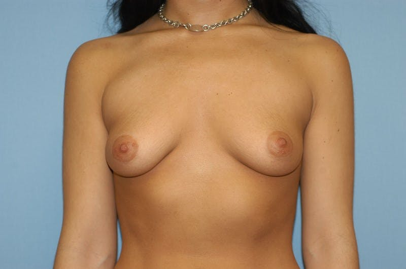 Breast Augmentation  Gallery - Patient 9567991 - Image 1