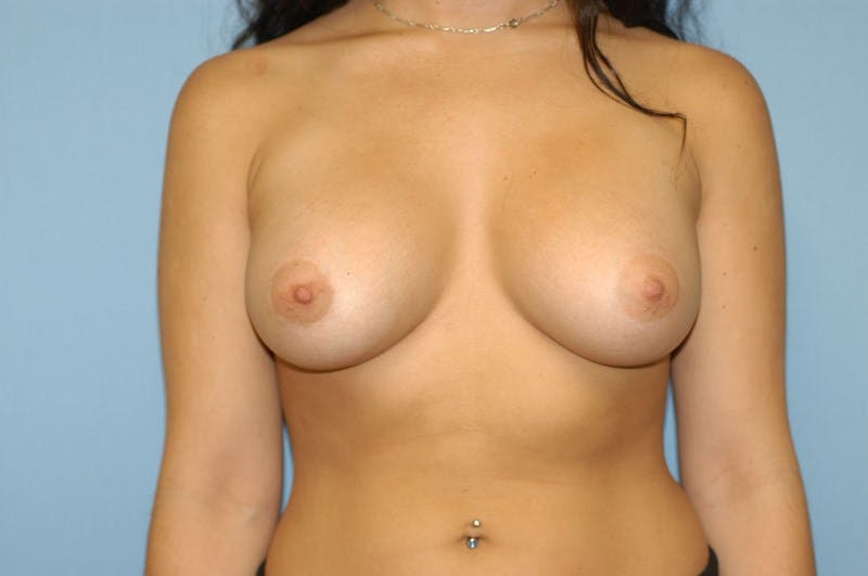 Breast Augmentation  Gallery - Patient 9567991 - Image 2