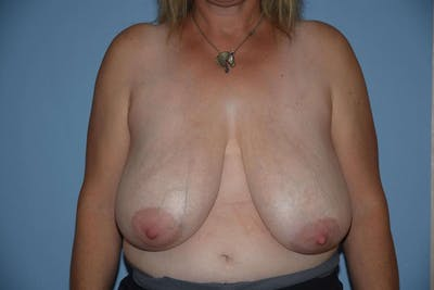 Breast Reduction Gallery - Patient 9568207 - Image 21