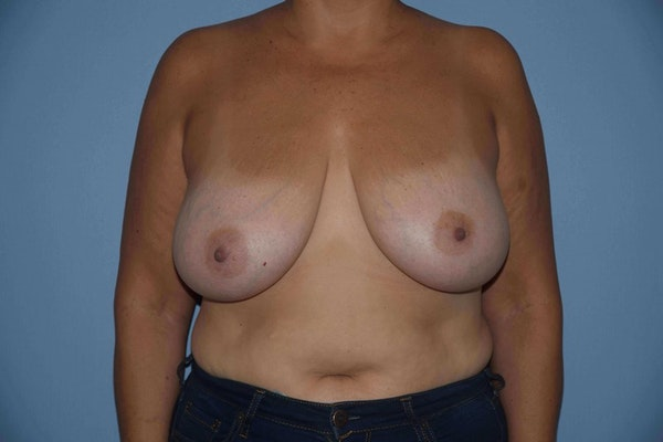 Breast Reduction Gallery - Patient 9568211 - Image 1