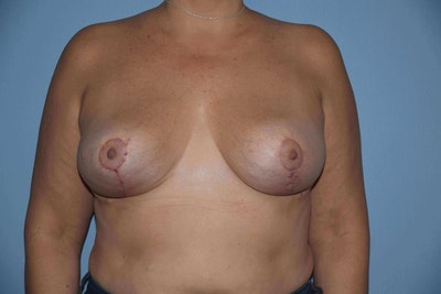 Breast Reduction Gallery - Patient 9568211 - Image 2