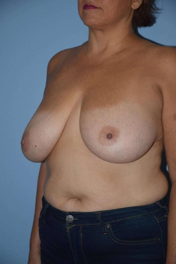 Breast Reduction Gallery - Patient 9568211 - Image 3