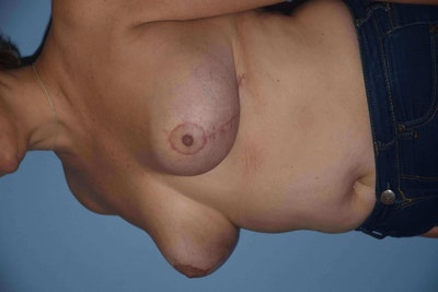 Breast Reduction Gallery - Patient 9568211 - Image 4