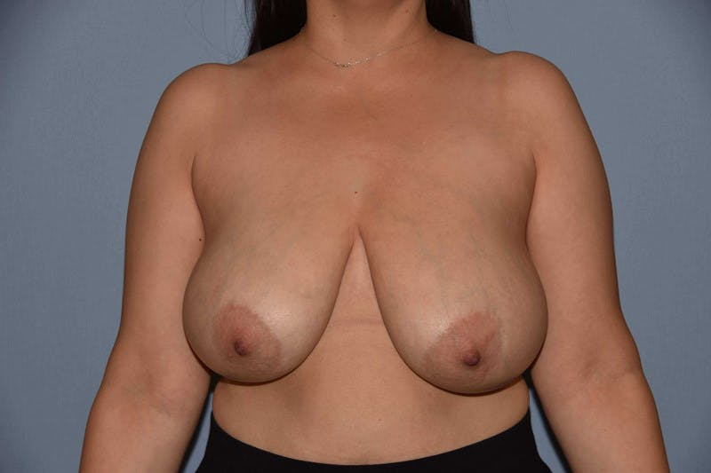 Breast Reduction Gallery - Patient 14281629 - Image 1