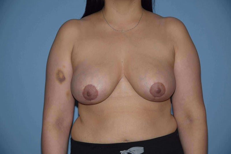 Breast Reduction Gallery - Patient 14281629 - Image 2