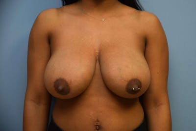 Breast Reduction Gallery - Patient 9568218 - Image 26
