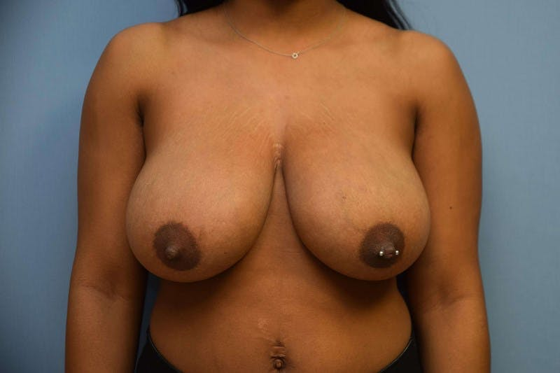 Breast Reduction Gallery - Patient 14281632 - Image 1