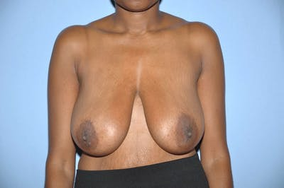 Breast Reduction Gallery - Patient 9568220 - Image 27