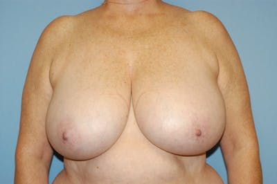 Breast Reduction Gallery - Patient 9568224 - Image 28