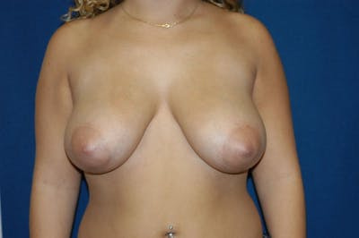 Breast Reduction Gallery - Patient 9568234 - Image 29