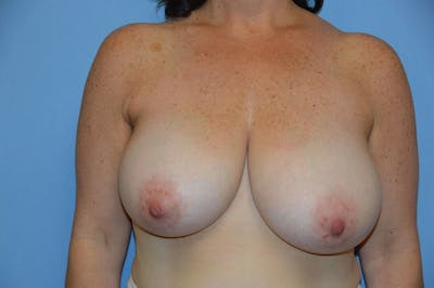 Breast Reduction Gallery - Patient 9568236 - Image 30
