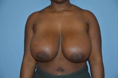 Breast Reduction Gallery - Patient 9568238 - Image 31