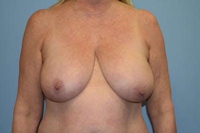 Breast Reduction Gallery - Patient 9568240 - Image 32