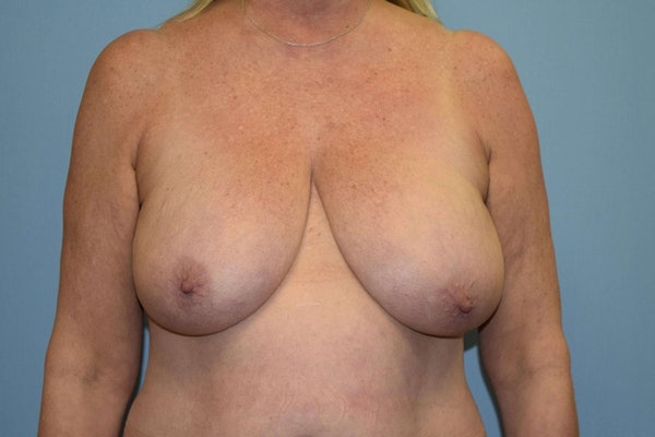 Breast Reduction Gallery - Patient 9568240 - Image 1