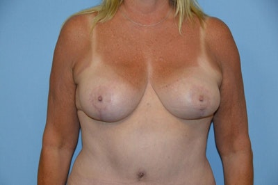 Breast Reduction Gallery - Patient 9568240 - Image 2