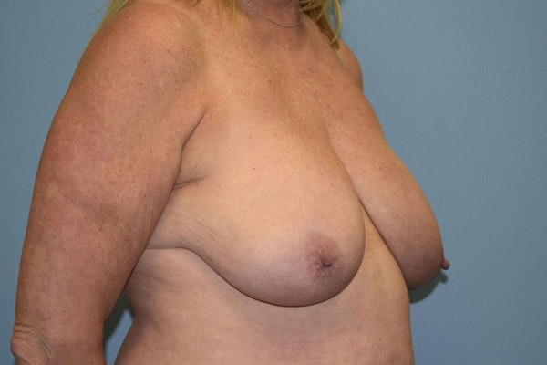 Breast Reduction Gallery - Patient 9568240 - Image 3