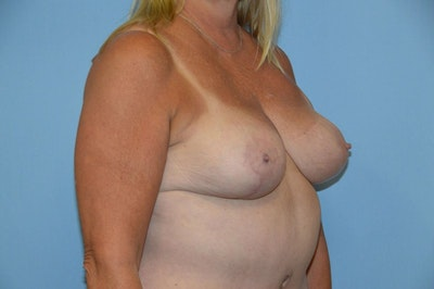 Breast Reduction Gallery - Patient 9568240 - Image 4