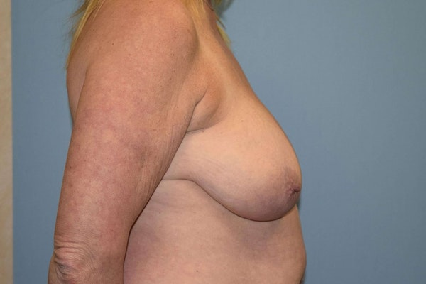 Breast Reduction Gallery - Patient 9568240 - Image 5