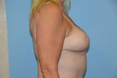 Breast Reduction Gallery - Patient 9568240 - Image 6