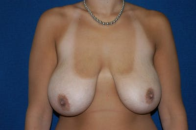 Breast Reduction Gallery - Patient 9568243 - Image 33