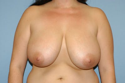Breast Reduction Gallery - Patient 9568244 - Image 34