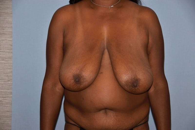 Breast Reduction Gallery - Patient 14281641 - Image 1