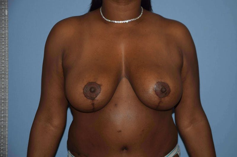 Breast Reduction Gallery - Patient 14281641 - Image 2