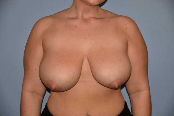 Breast Reduction Gallery - Patient 9568255 - Image 1