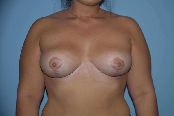 Breast Reduction Gallery - Patient 9568255 - Image 2