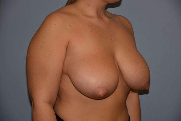 Breast Reduction Gallery - Patient 9568255 - Image 3
